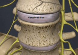 Degenerative_Disc_Disease
