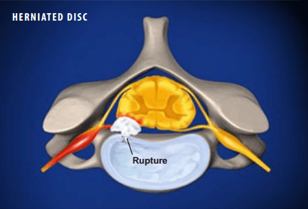 Herniated Disc Information