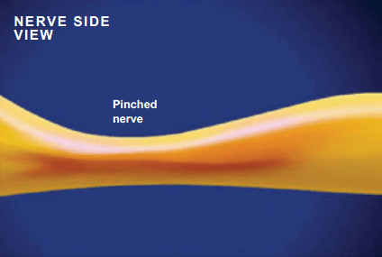 Pinched Nerve – What Is It?