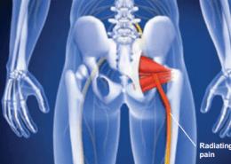 Woodstock Piriformis syndrome help sciatica pain