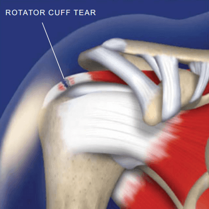 Rotator Cuff Tears Relief Georgia Spine Amp Disc Chiropractor