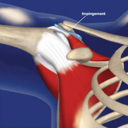 Shoulder Impingement Syndrome Georgia Spine Amp Disc
