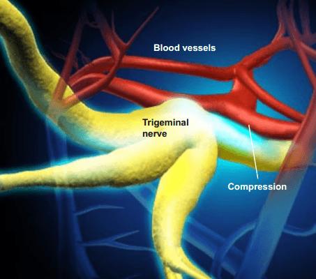 Trigeminal_Nerve woodstock chiropractor