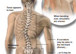 Woodstock chiropractor on Scoliosis