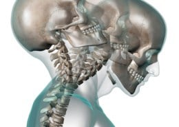 Chiropractic help for whiplash woodstock ga
