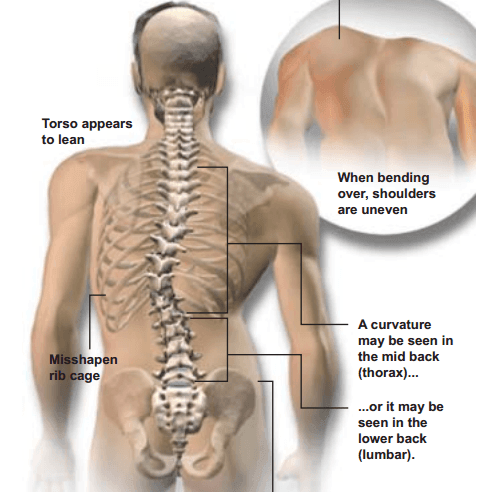 What You Need To Know About Scoliosis Advanced Health