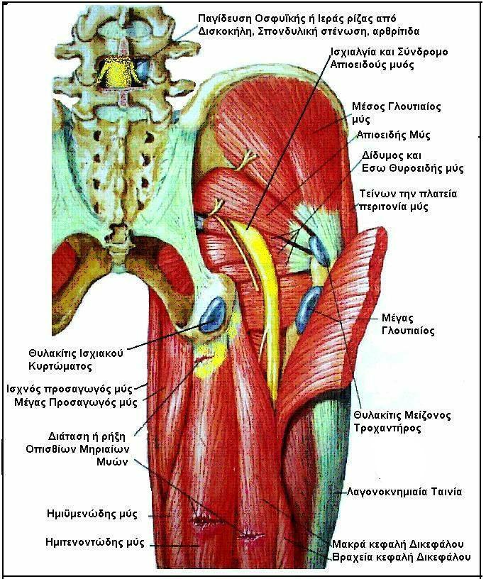Help With Sciatica Pain Advanced Health Solutions