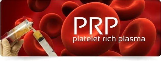 Image result for PRP THERAPY