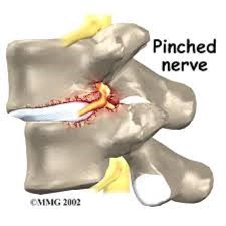 Pinched Nerve Woodstock GA