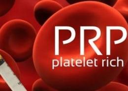 Platelet-Rich Plasma Therapy