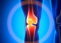 Knee Cartilage Regeneration