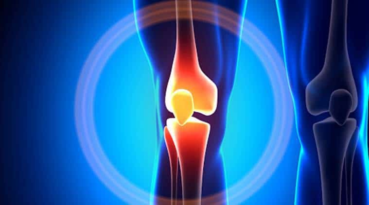 Do you have Patellar Malalignment?