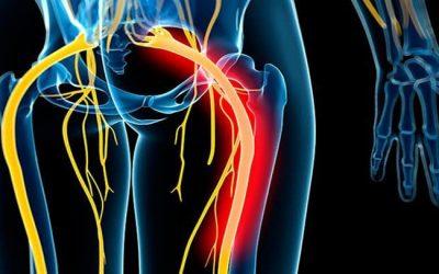 Common Symptoms of Sciatic Nerve Pain #1