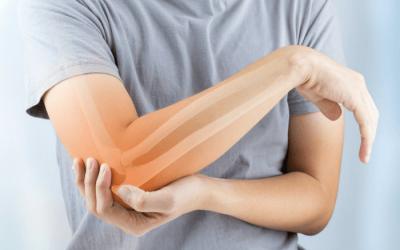 MyACT Treatment