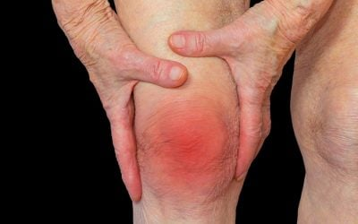 Treat Inflammation With Cold Laser Therapy