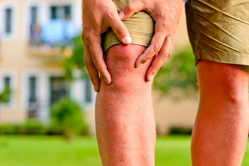Are You Suffering From Knee Arthritis?