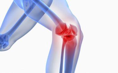 Knee Pain Due To Arthritis