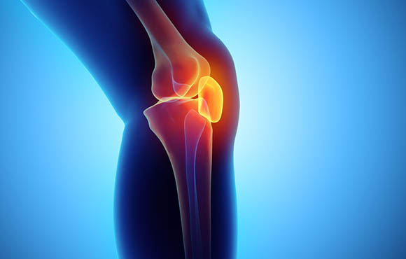 Patellar Malalignment Physical Therapy Management