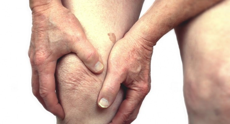 Osteoarthritis-Knee Arthritis