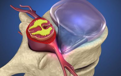 What Are Herniated Disc?