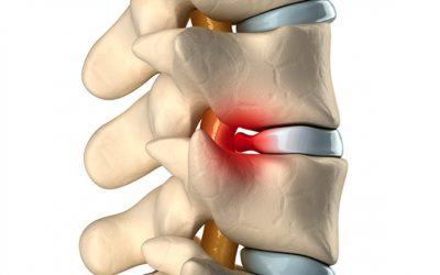 Symptoms of Herniated Disks 2